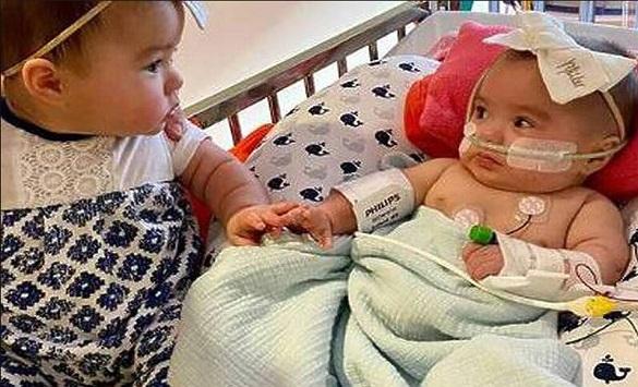 Слика од Трогателна прва средба на седуммесечни близначиња