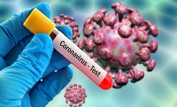 Слика од Во САД повеќе од 2.000 починати од коронавирус за еден ден