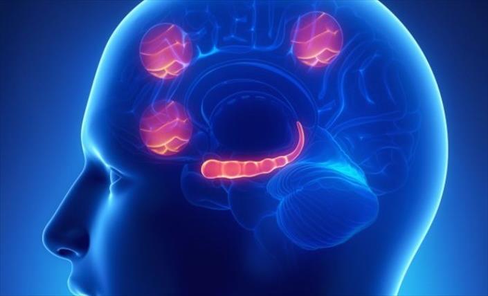 Слика од Оштетување на мозокот типично за пациенти со Алцхајмерова болест, откриени кај починати од Ковид-19