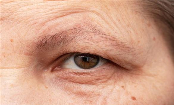 Слика од Брчките на челото можеби се предзнак за проблеми со срцето